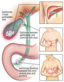 diseases of the gall bladder and bile ducts picture 6