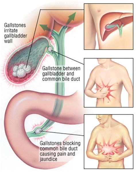 gall bladder stuck to stomach picture 2