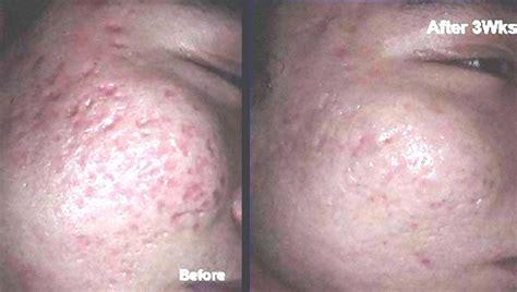 treat acne picture 2