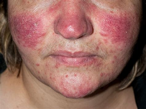 drugs for acne picture 14
