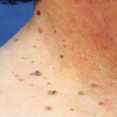 cause of skin tags picture 17