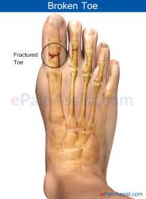 probable fracture of 5th toe joint picture 3