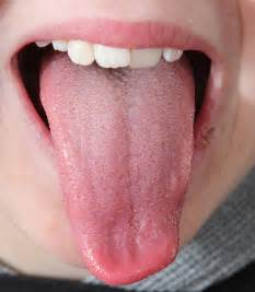 tongue picture 1