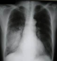microbacterial pneumonia picture 5