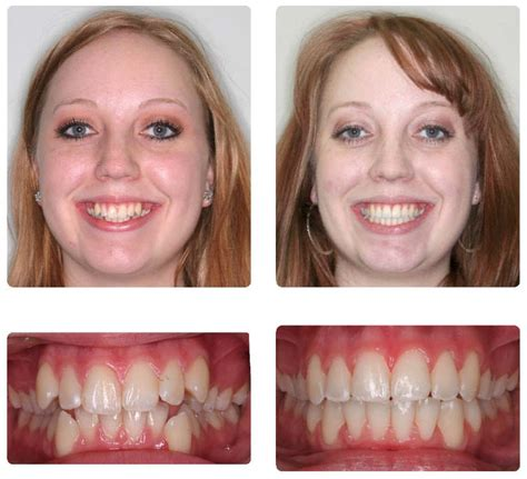 crowded teeth picture 13