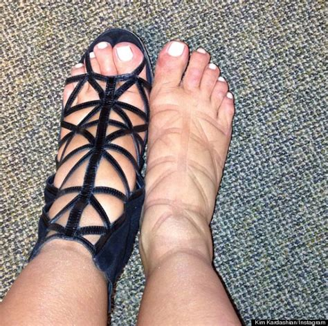 swollen ankles and gain weight picture 2