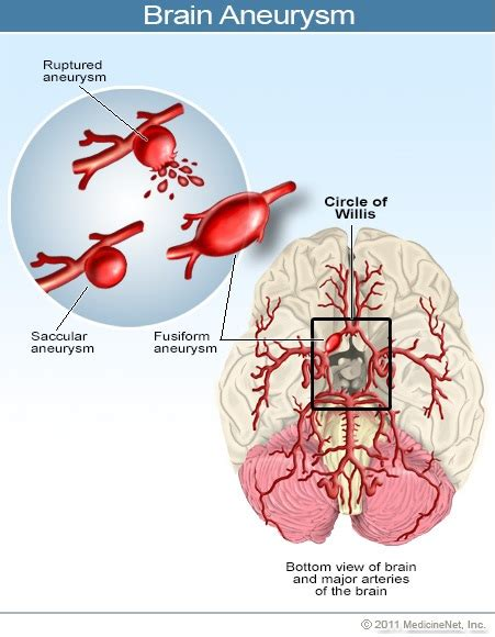 aneurysm high blood pressure picture 5