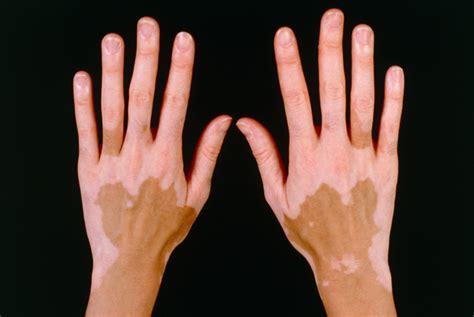 can thyroid cause vitiligo picture 1