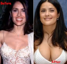 breast enlargement before after picture 14