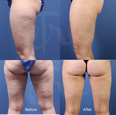 cellulite and laser insute picture 6
