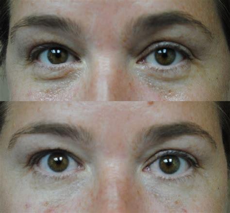 co2 laser acne treatment picture 17