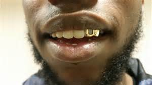 all teeth grillz picture 15