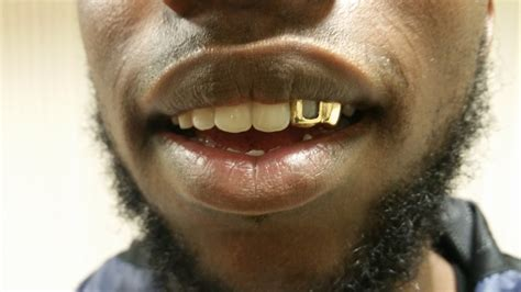 blue gold teeth picture 6