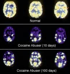 the aging effects of drugs picture 5