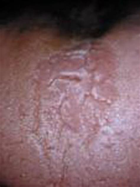 breast yeast infection picture 14