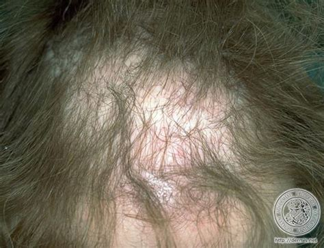 yeast infection remedies picture 13