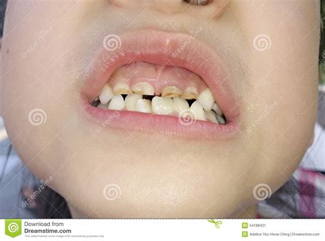 childs teeth are turning yellow picture 5