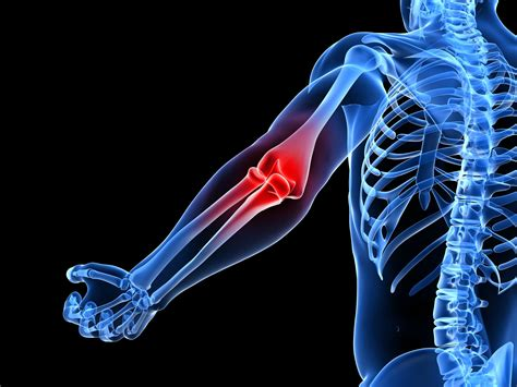 armor and joint pain picture 9