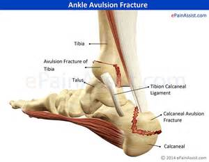 no appe e weight loss swollen foot are symptoms of picture 2