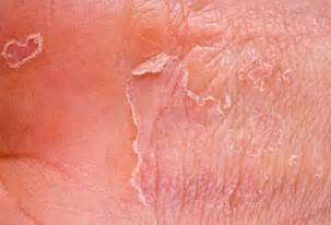 photo for skin disorders picture 7