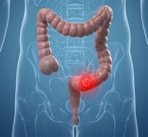 intestinal cancer picture 1