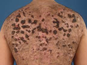 acne conglobata back pictures picture 1