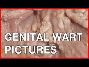 remove warts caused by human papilloma virus pill picture 15