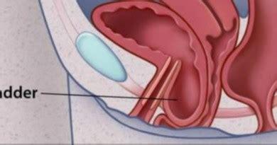 fallen bladder natural solutions picture 14