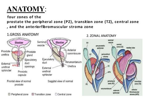 bladder and prostate picture 1