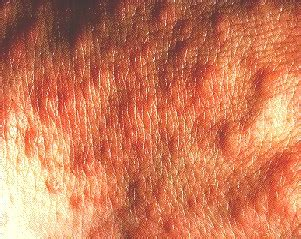 skin bumps caused by the sun picture 2
