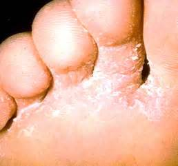 diseases picture 15