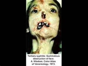 early stage pictures of herpes in women picture 2