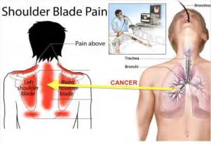 pain in between shoulder blades can being a picture 10