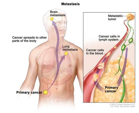 chemotherapy metastatic liver cancer picture 2