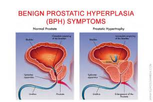 symptoms of benign prostatic hypertrophy picture 1