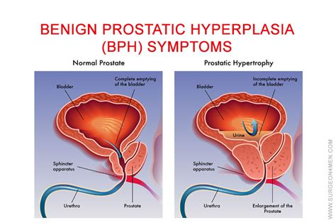 definition of benign prostatic hyperplasia picture 2