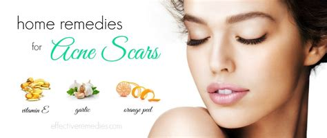 home remedies for acne picture 7