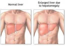 liver pain where is it picture 9