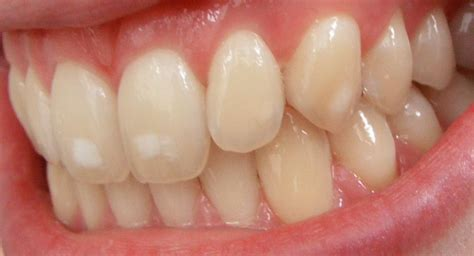 discolored teeth fluorosis picture 2