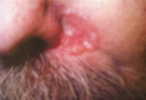 contagious skin diseases picture 6