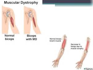 history of muscle disorders picture 1