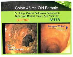 clean your colon with water picture 1