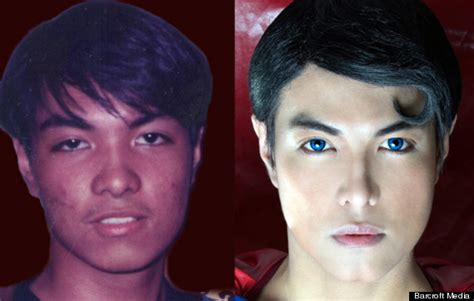 cost of male nose enhancement in the philippines picture 6