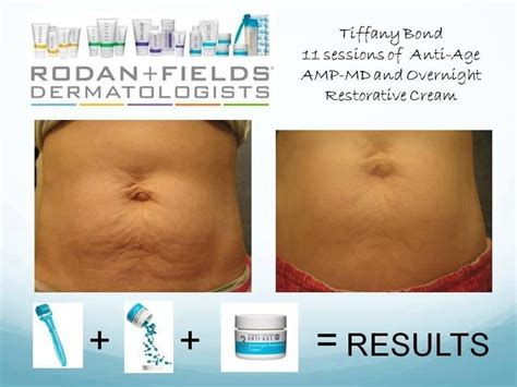 rodan and fields for cellulite and stretch marks picture 15