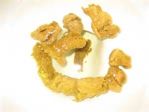 yellow bowel movement causes picture 7