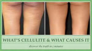 what causes cellulite picture 1