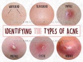 acne cyst picture picture 13