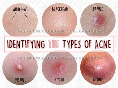 nodnuel cystic acne medical definition picture 15
