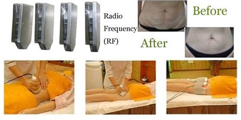 cellulite machines for estheticians picture 13