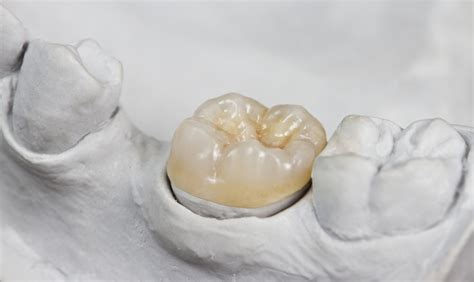 new york tooth crown picture 1